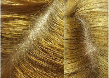 Centrum Zdrowych Włosów - peeling skóry głowy / purezza