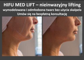 Yasumi Polkowice - hifu med lift - cała twarz + szyja +rf