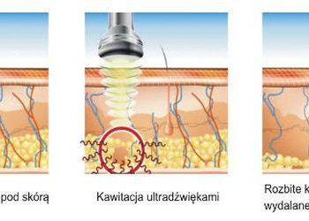 Crystal Clinic - lipoliza do endermologii