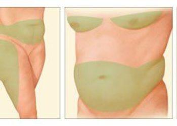 Royal Vital Sienna 93 - karboksyterapia brzuch