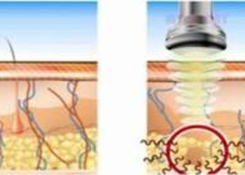 Crystal Clinic - pakiet 5 zabiegów lipolizy