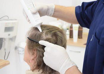 Gabinet trychologiczny Novo.Hair - peeling skóry głowy