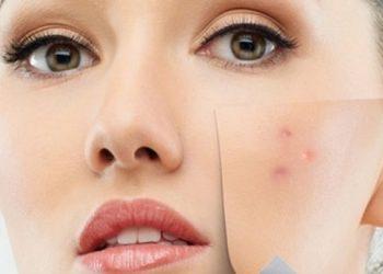Bezpieczna Kosmetyka Agnieszka Mienik - zabiegi redukujące przebarwienia