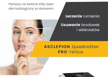 KLUB PIĘKNA Gabinet Kosmetyczny  - zamykanie naczyń krwionośnych - pojedyncze naczynko twarz / nogi