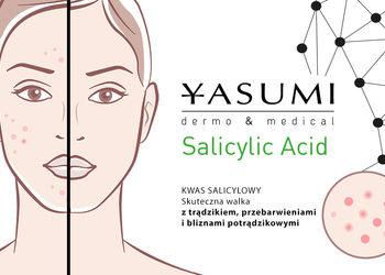 Yasumi Polkowice - salicylic lc acid peel (kwas salicylowy) - trądzik, zaskórniki