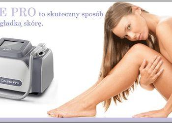 ARKESIA - laserowe usuwanie owłosienia cała twarz