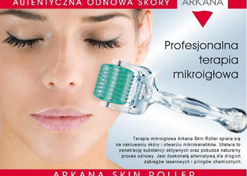Terapia mikroiglowa