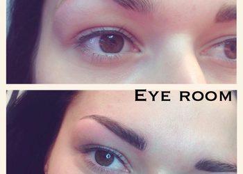 Eye room1