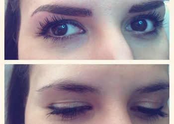 Eye room3