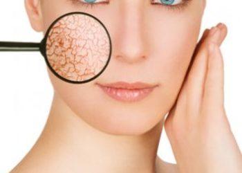 Studio Kosmetyczne Orchidea - 040. elektrokoagulacja - zamykanie naczynek na twarzy
