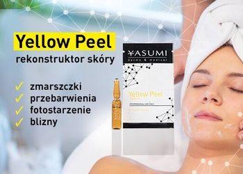 Instytut Zdrowia i Urody YASUMI - zabieg yellow peel -