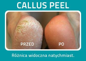 Calluspeel