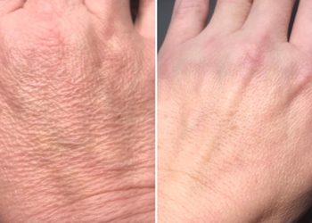 Beauty Complex - lifting dłoni hifu