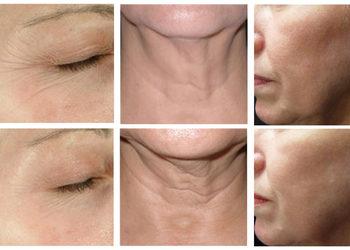 Beauty Complex - lifting twarzy i szyi hifu