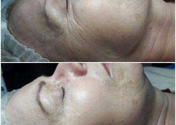 GABINET KOSMETOLOGICZNY KAMILJA -  infuzja tlenowa twarz z opracowaniem ust i okolic oczu