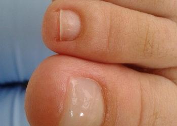 Fabryka Urody - rekonstrukcja paznokcia stopy