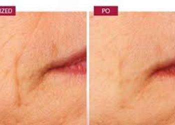 Zakątek Piękna - revinol zabieg rewitalizujący,antyoksydacyjny, wygładzający z retinolem i wit c