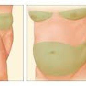 Zakątek Piękna - Dermaheal LL 5ml usuwanie tkanki tłuszczowej i cellulitu