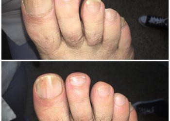 Śląskie Centrum Podologii - obcięcie i oszlifowanie paznokci