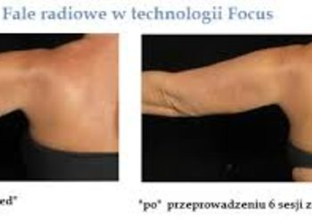 Zakątek Piękna - liposukcja ramiona