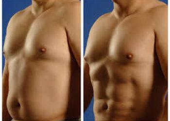 Zakątek Piękna - liposukcja brzuch