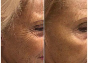 Gabinet Kosmetyczny Maricler - szybka regeneracja - nowość