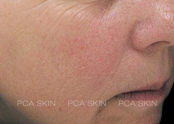 Royal Vital Sienna 93 - pca skin ultra peel i