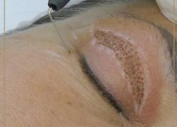 JADORE INSTYTUT - plasma iq - lifting powiek / eyelids lift