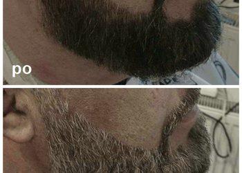 STUDIO FRYZJERSKIE CASANDRA - tonowanie brody,wąsa
