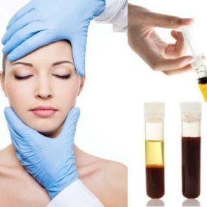 Olimpia Day SPA - OSOCZE bogatopłytkowe Autologic Therapy - skóra głowy