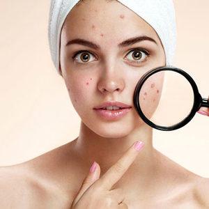 Olimpia Day SPA - Rebalancing Treatment - Zabieg dla skóry tłustej, problematycznej i trądzikowej