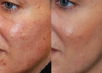 Salon Urody i Modelowania Sylwetki Babski Looksus  - redukcja przebarwień - laser ipl - twarz