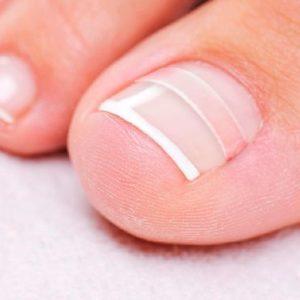 Bionika Urody - Klamra wrastający paznokieć