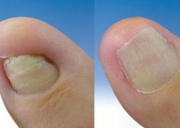 Bionika Urody - rekonstrukcja płytki paznokciowej stopa