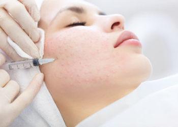 Bionika Urody - mezoterapia igłowa twarz