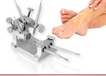 Ecosfera Centrum Podologii i Kosmetologii - korekta paznokcia wrastającego - metoda arkady