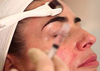 Salon Urody i Modelowania Sylwetki Babski Looksus  - mezoterapia mikroigłowa z pielęgnacją na twarz+szyję+dekolt