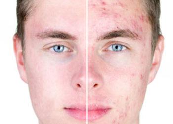 Fabryka Diamentów - dr belter oczyszczanie manualne twarzy