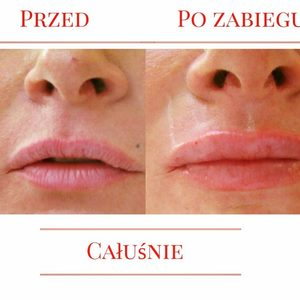 Di Origine Kosmetologia Estetyczna i Trychologia - Powiększanie i modelowanie ust