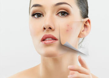 Studio Kosmetyczne URODOMANIA - zabieg eksfoliacji dermoestetycznej 50% peelingiem pirogronowym