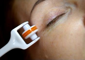 Salon Urody i Modelowania Sylwetki Babski Looksus  - mezoterapia mikroigłowa - oczy