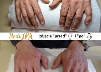 Brazylijskie spa regeneracja dloni stop salon medi spa