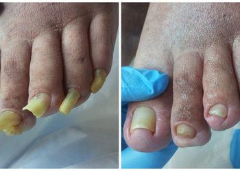 Kosmetikus Gabinet Podologiczno Kosmetyczny  - opracowanie paznokci zrogowaciałych, przerośniętych, grzybiczych