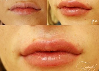 Zakątek Piękna - powiększanie i modelowanie ust 1 ml