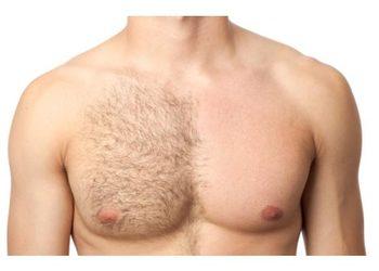 Instytut Urody POR FAVOR - depilacja woskiem- tors+brzuch