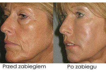 Art of Cosmetology - rhonda allison - fitness  lifting -  szybki lifting na twarzy