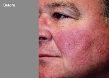 CLINIQMED - bbl duży obszar twarz+szyja+dekolt/ plecy