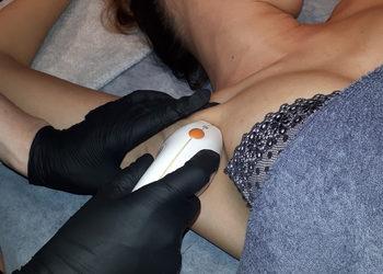 beautebar - lightsheer desire - depilacja laserowa - pachy