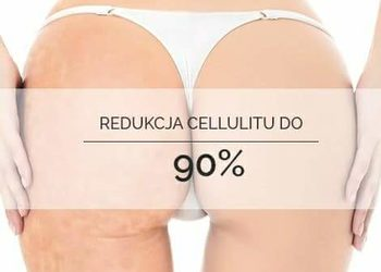 Hanna beauty studio - karboksyterapia - cellulit
