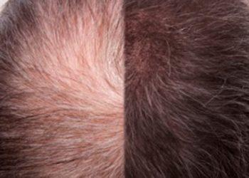 Hanna beauty studio - karboksyterapia - skóra głowy